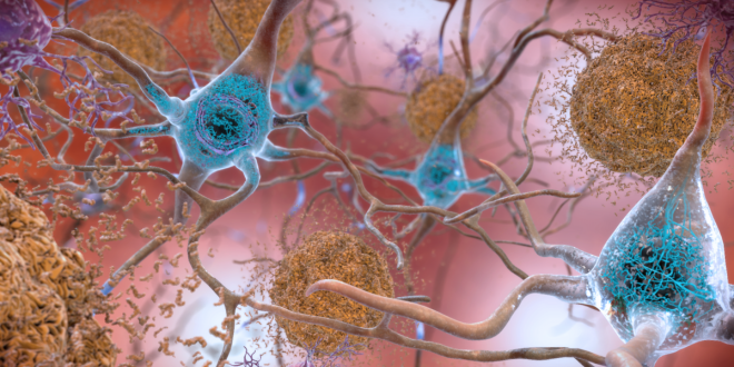 Scientists Find Unusual Form of Iron and Copper in Brains of Alzheimer's Patients