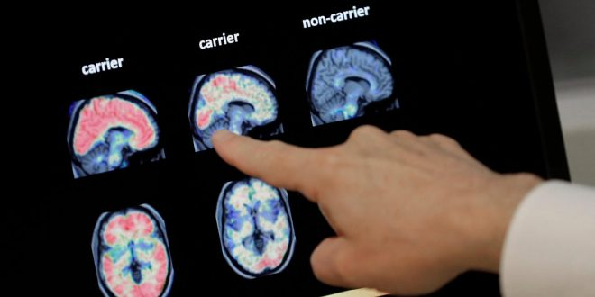 FDA Backpedals on Aduhelm Approval, Now Says Only Early Alzheimer's Patients Should Get It